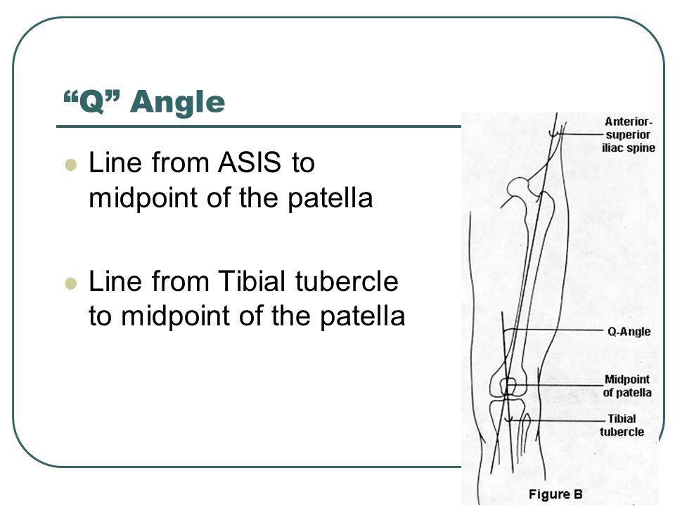 Q Angle Line from ASIS to midpoint of the patella