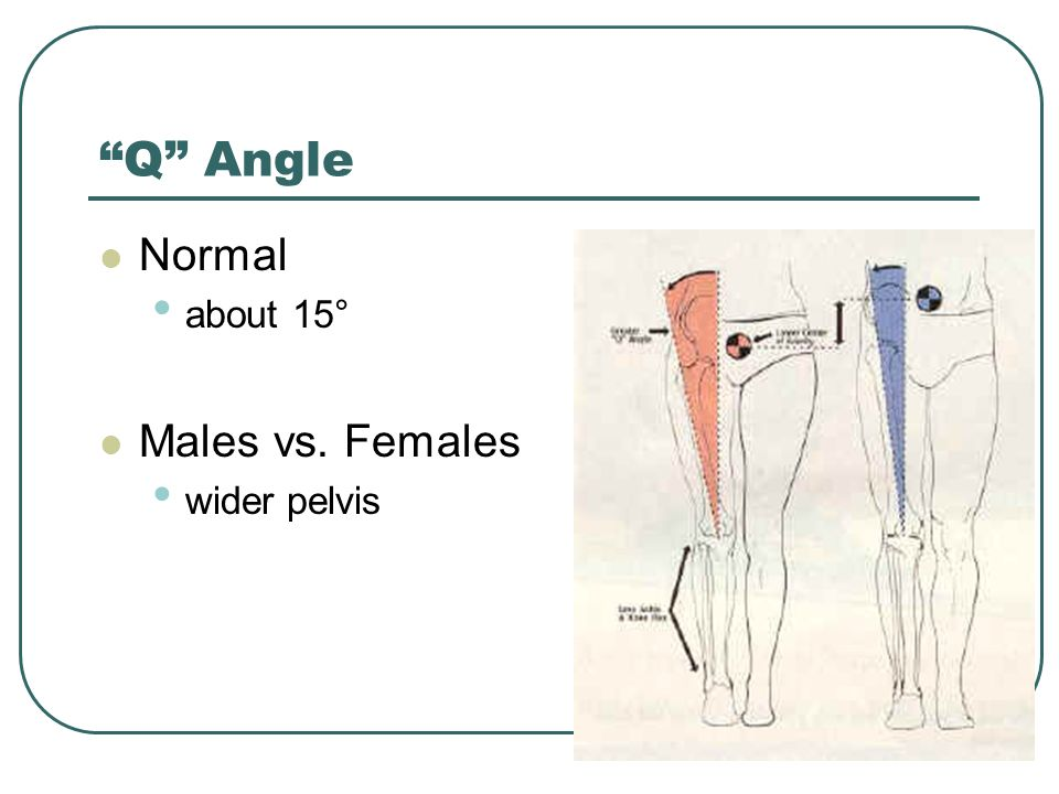 Q Angle Normal about 15° Males vs. Females wider pelvis