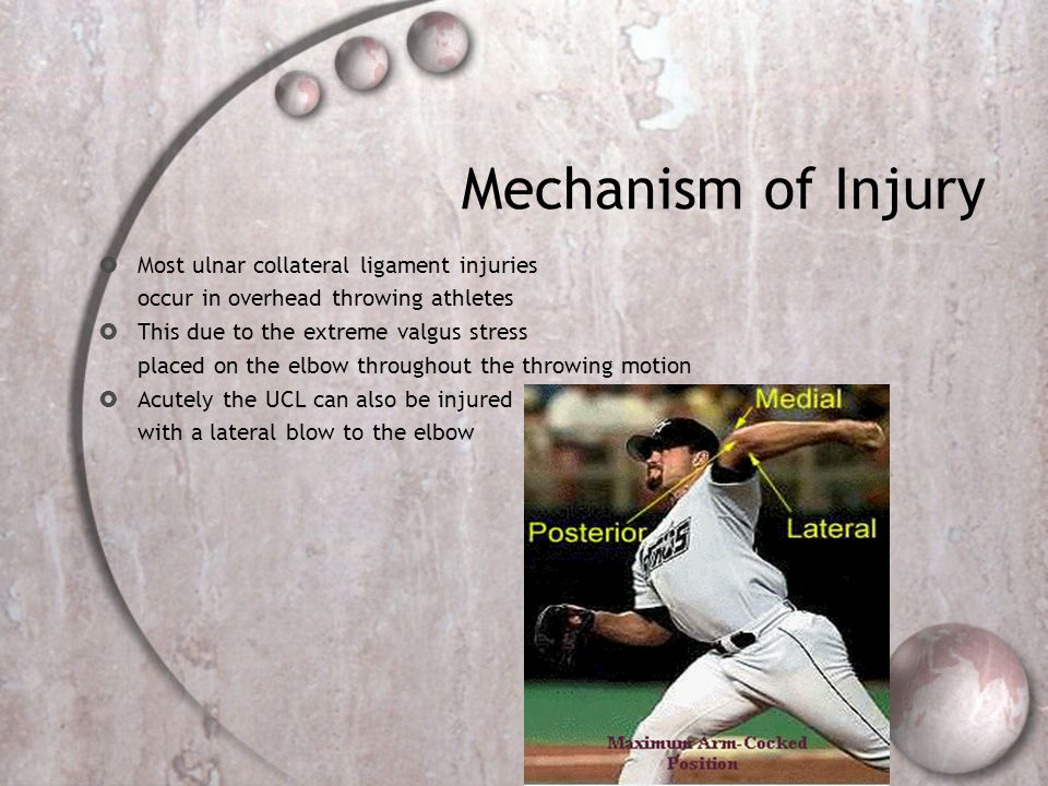 Mechanism of Injury Most ulnar collateral ligament injuries