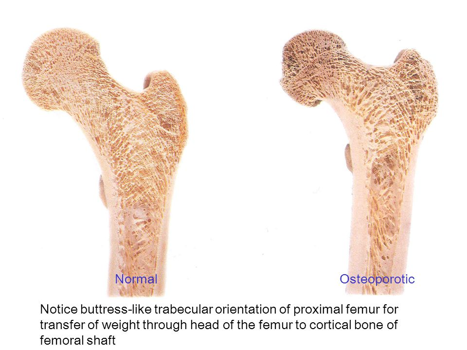 Normal Osteoporotic.