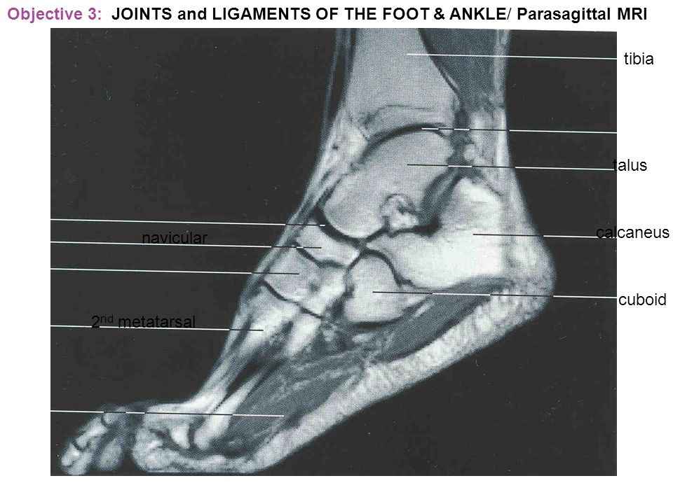 Objective 3: JOINTS and LIGAMENTS OF THE FOOT & ANKLE/ Parasagittal MRI