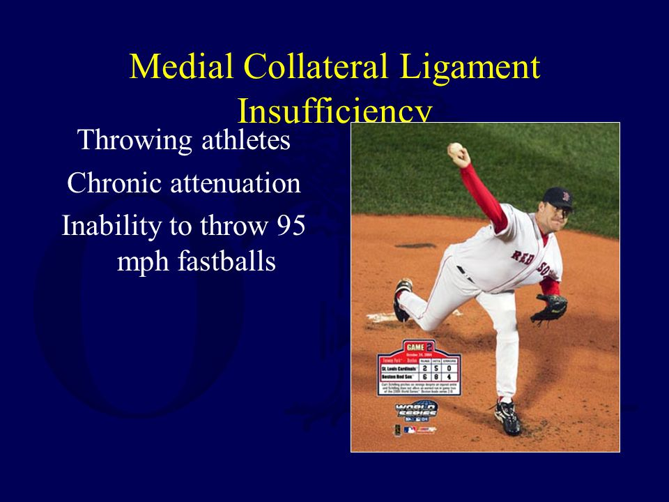 Medial Collateral Ligament Insufficiency
