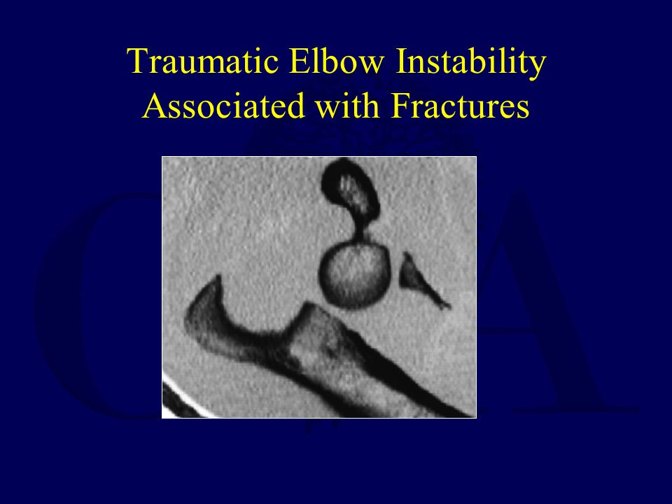 Traumatic Elbow Instability Associated with Fractures