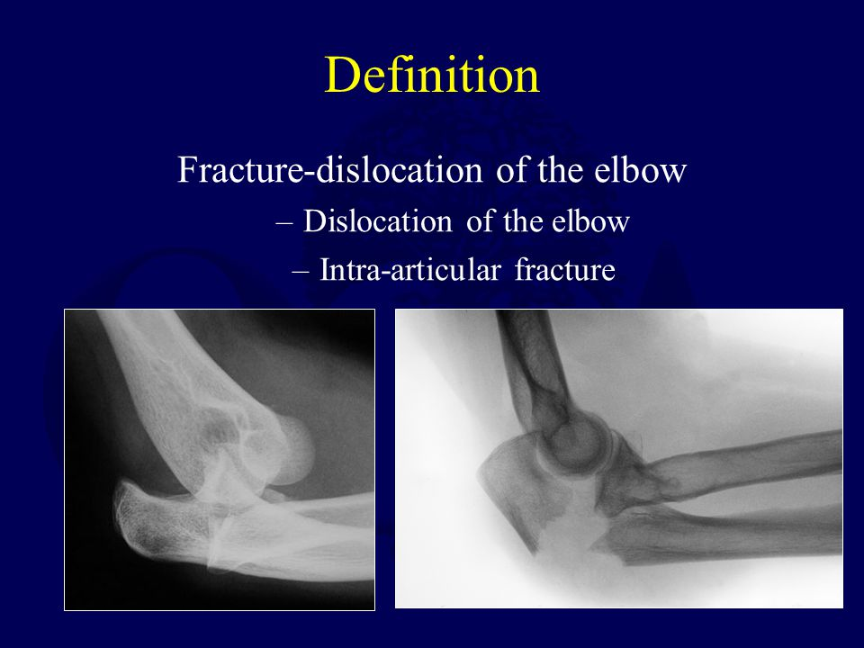 Definition Fracture-dislocation of the elbow Dislocation of the elbow