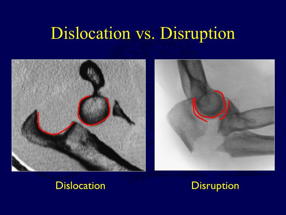 Dislocation vs. Disruption