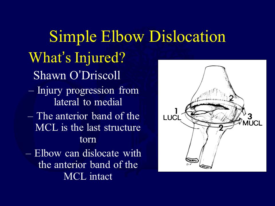 Simple Elbow Dislocation
