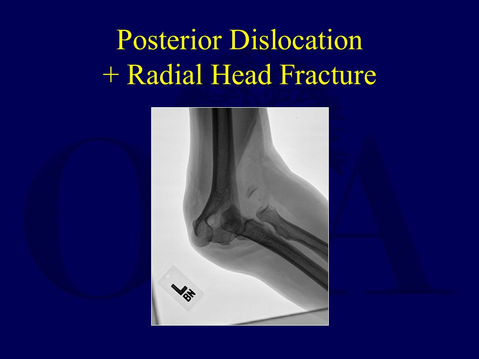 Posterior Dislocation + Radial Head Fracture