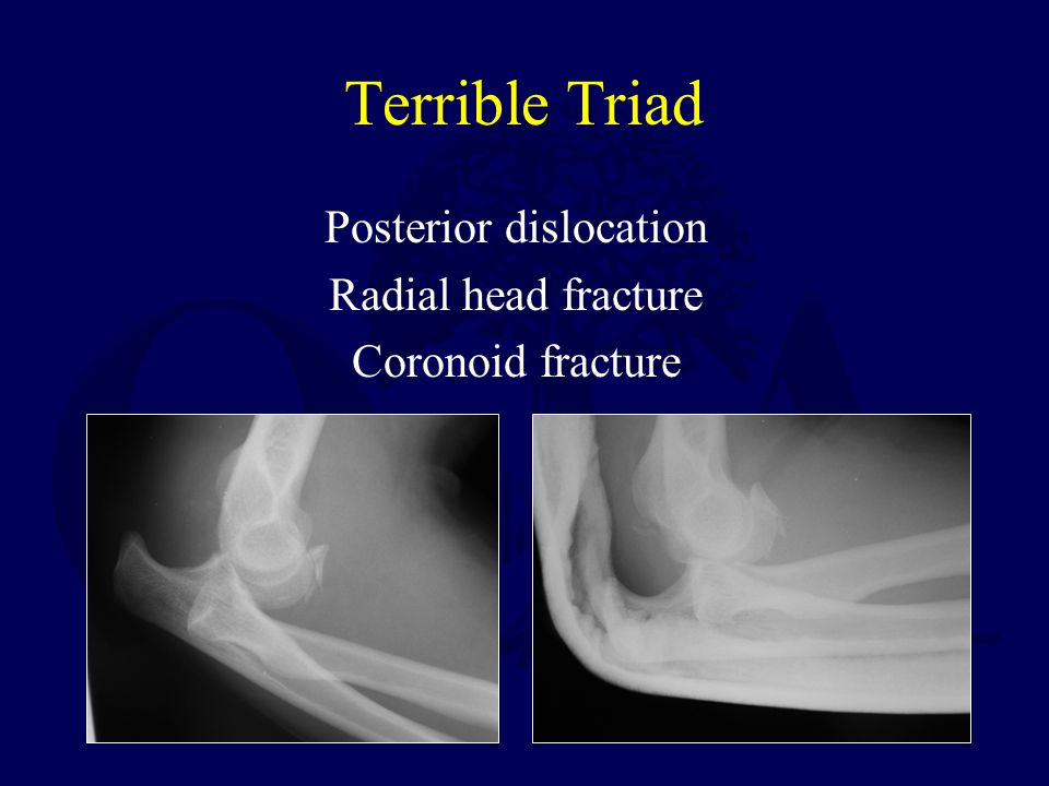 Posterior dislocation Radial head fracture Coronoid fracture