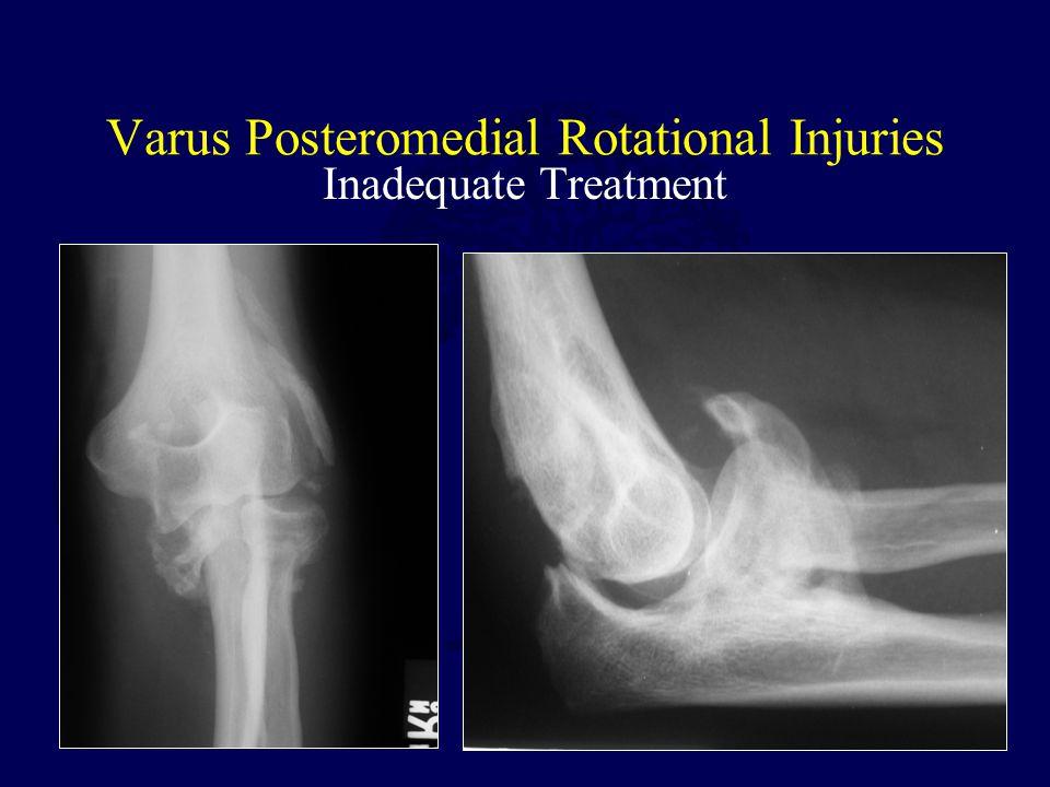 Varus Posteromedial Rotational Injuries