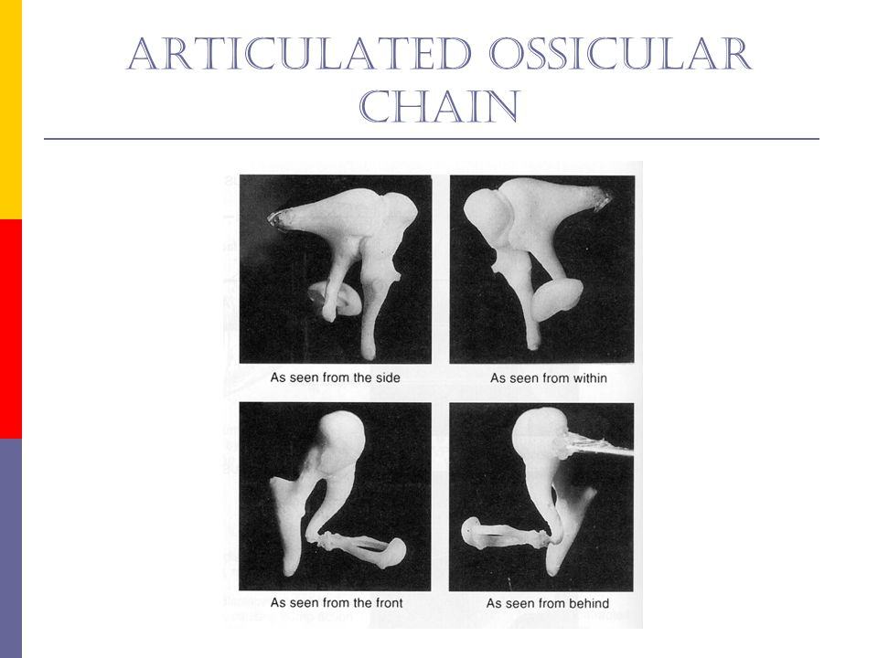 Articulated ossicular chain