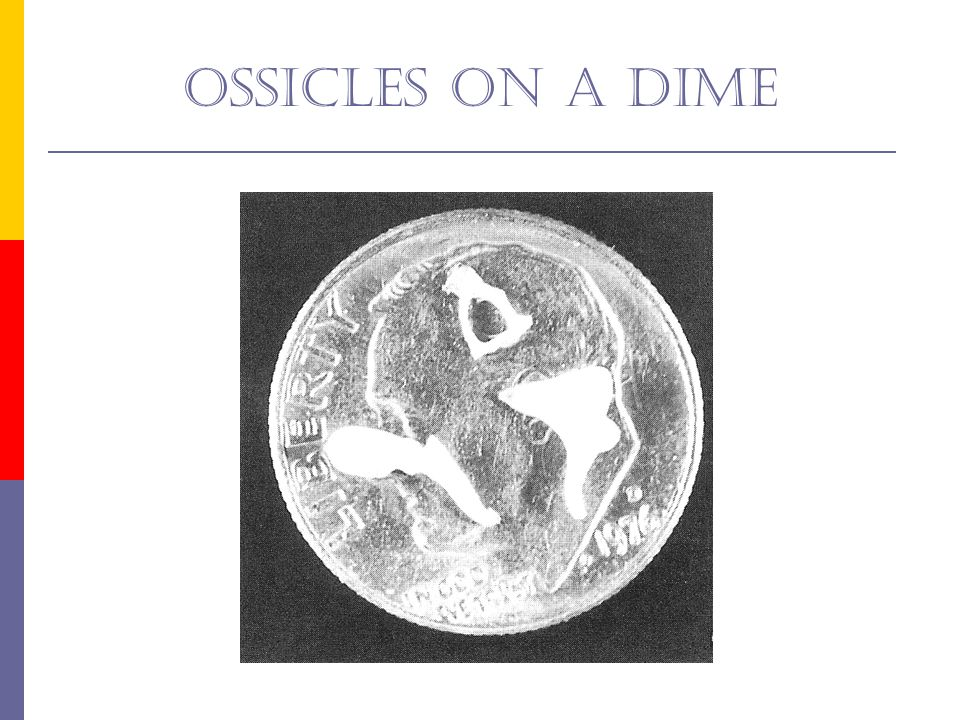 Ossicles on a dime Fig 6-53 is a photo of the three middle ear bones sitting on a dime.