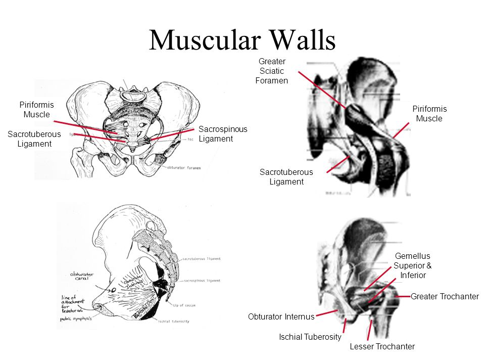 Muscular Walls Greater Sciatic Foramen Piriformis Muscle