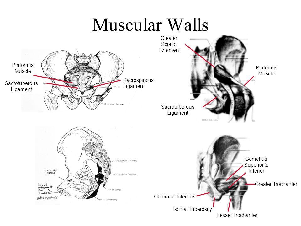 Muscular Walls Greater Sciatic Foramen Piriformis Muscle