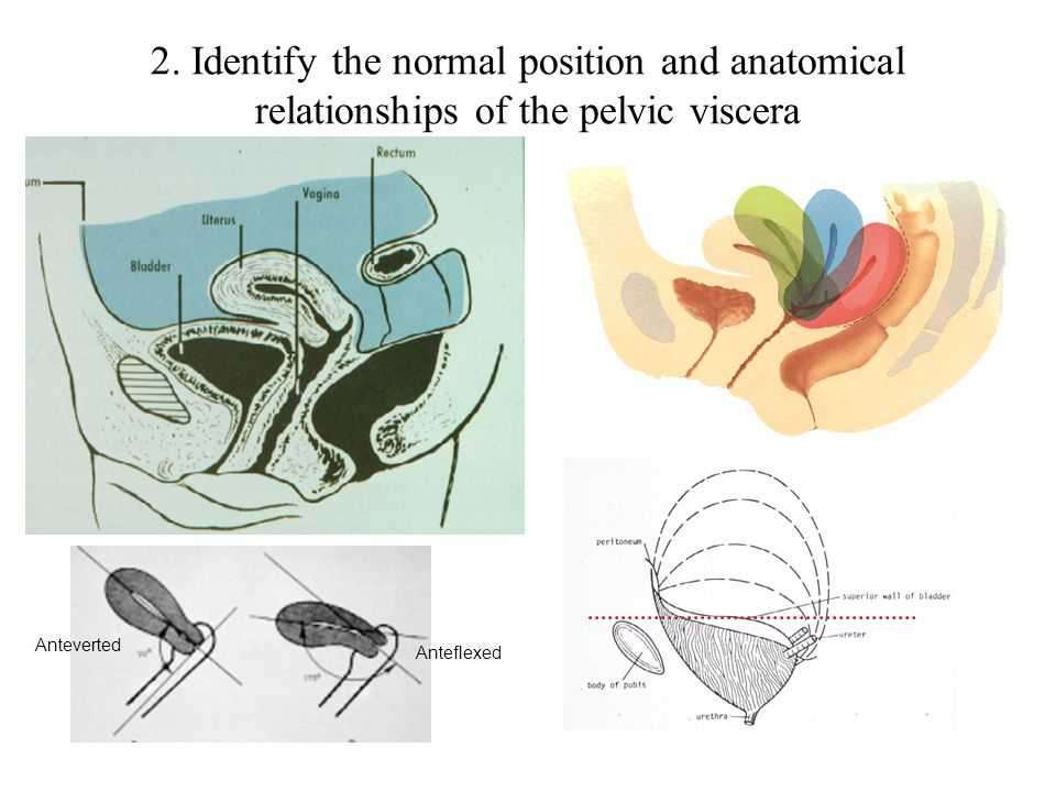 2. Identify the normal position and anatomical relationships of the pelvic viscera
