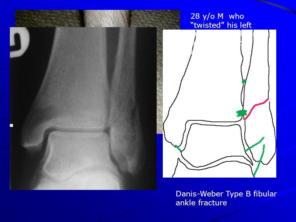 Danis-Weber Type B fibular ankle fracture