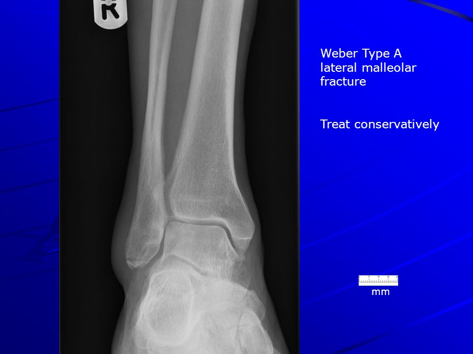 Weber Type A lateral malleolar fracture