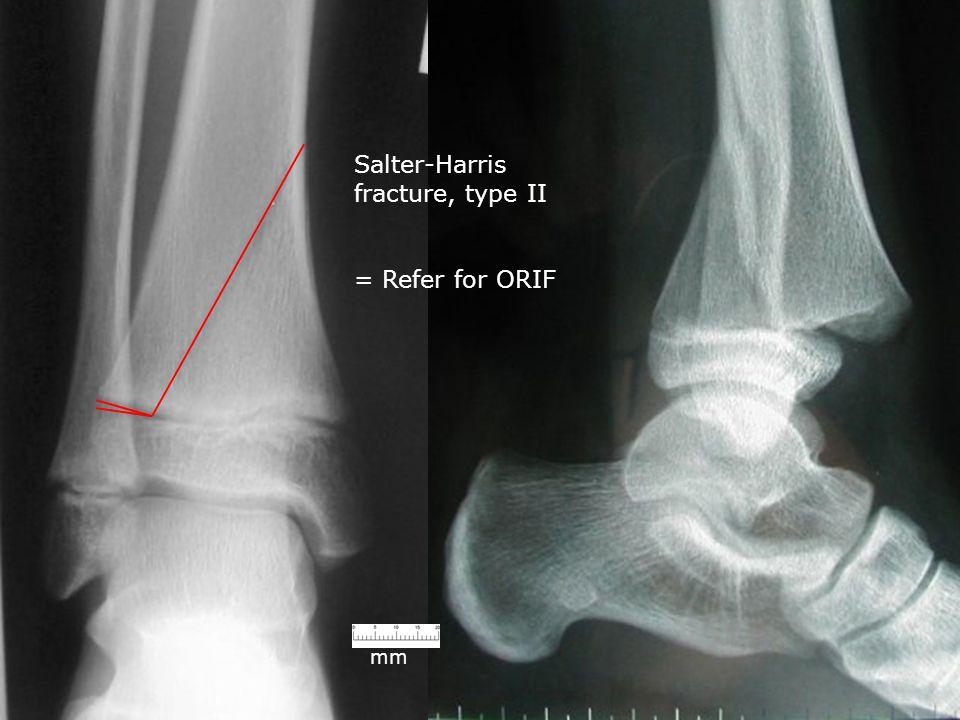 Salter-Harris fracture, type II