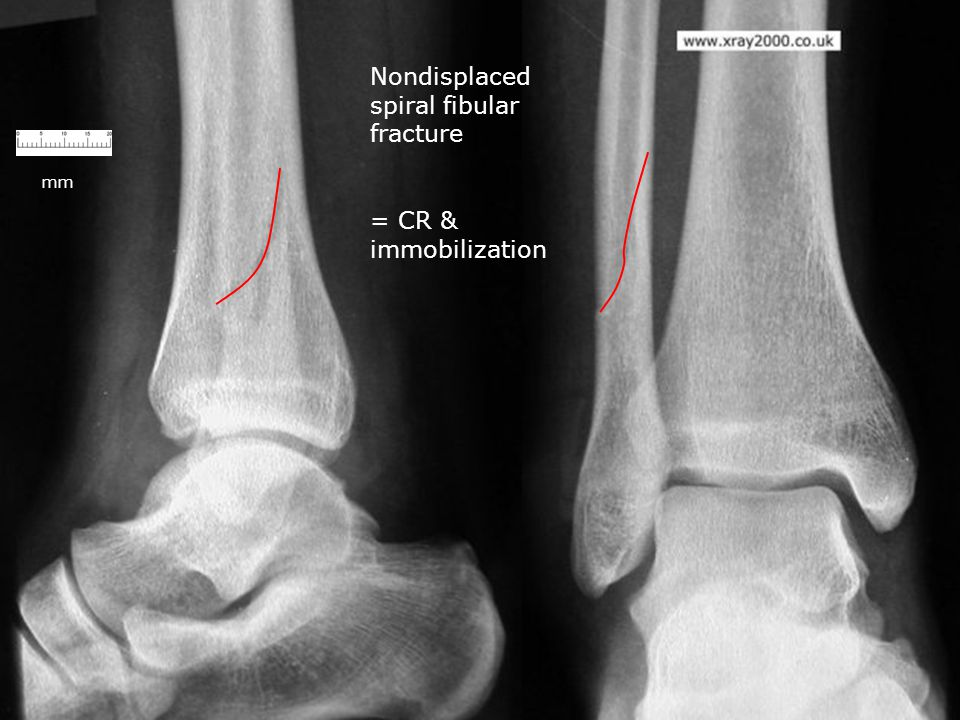Nondisplaced spiral fibular fracture