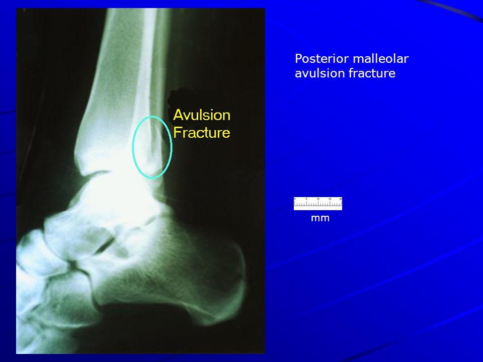 Posterior malleolar avulsion fracture