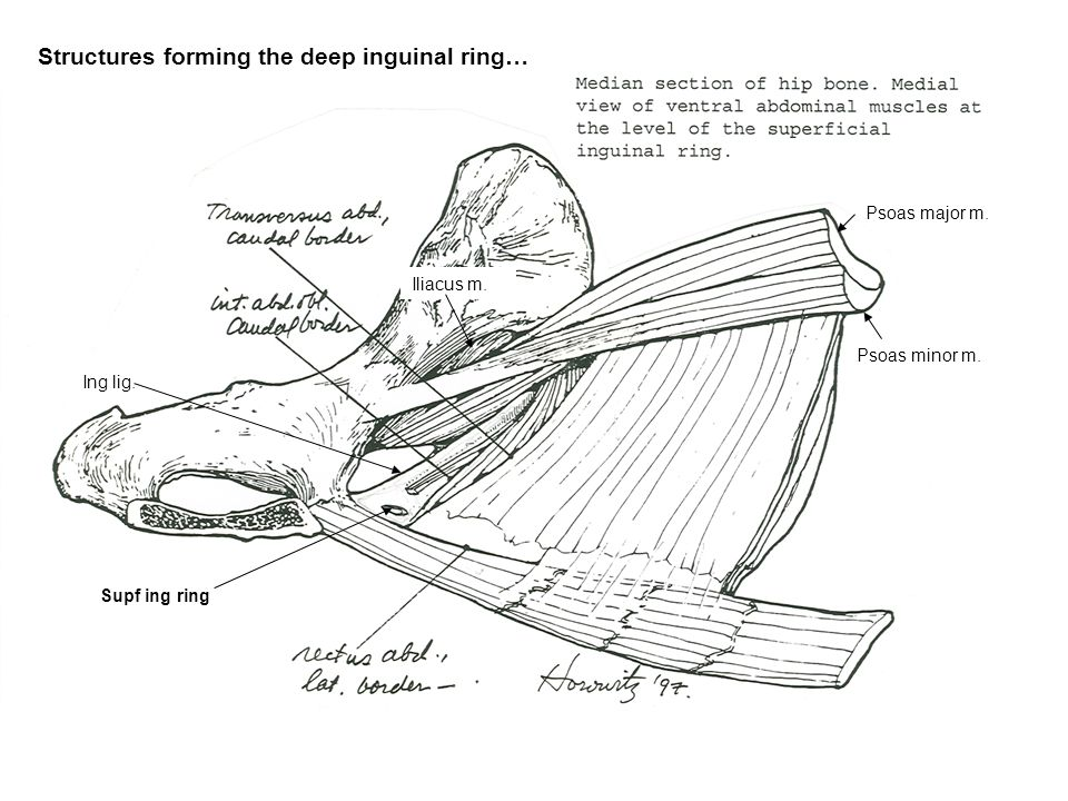 Structures forming the deep inguinal ring…
