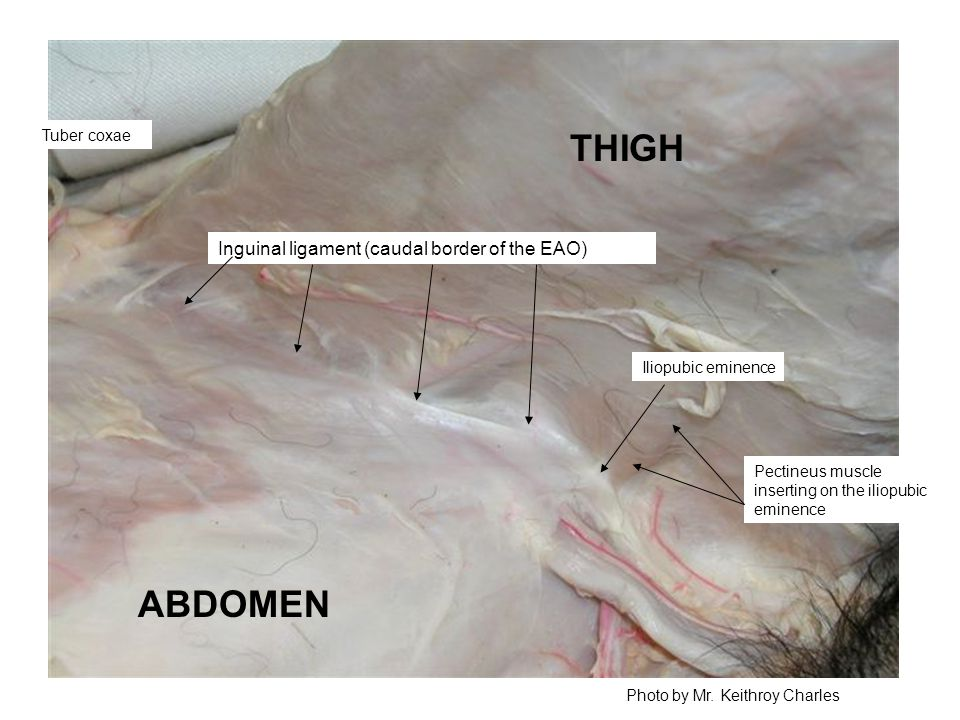 THIGH ABDOMEN Inguinal ligament (caudal border of the EAO) Tuber coxae