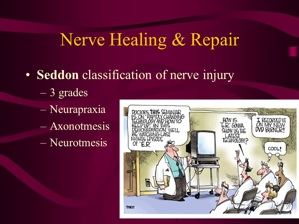 Nerve Healing & Repair Seddon classification of nerve injury 3 grades