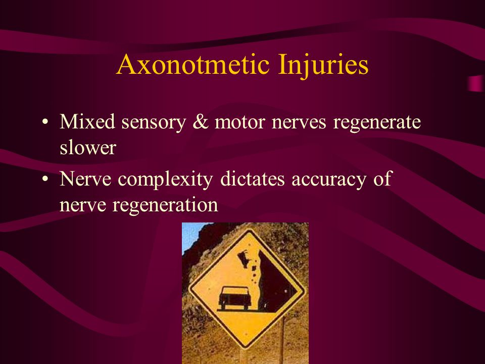 Axonotmetic Injuries Mixed sensory & motor nerves regenerate slower