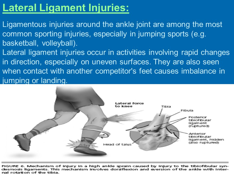 Lateral Ligament Injuries: