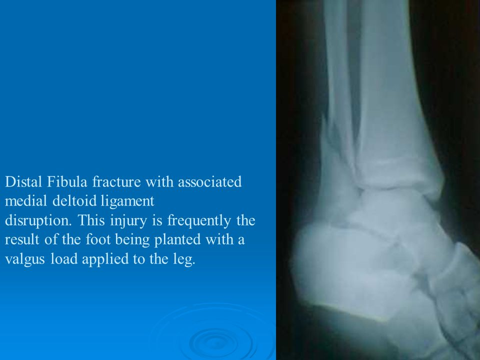 Distal Fibula fracture with associated medial deltoid ligament disruption.
