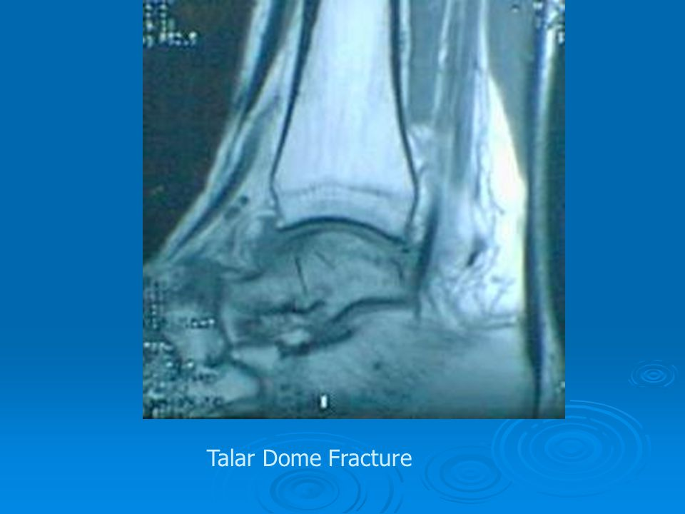 Talar Dome Fracture