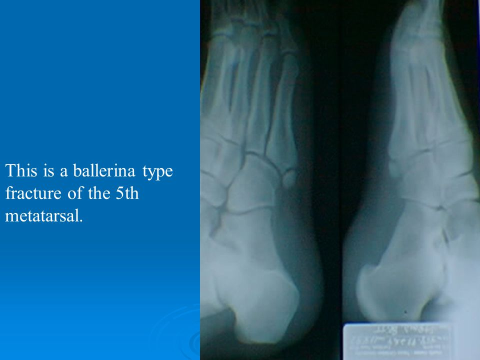 This is a ballerina type fracture of the 5th metatarsal.