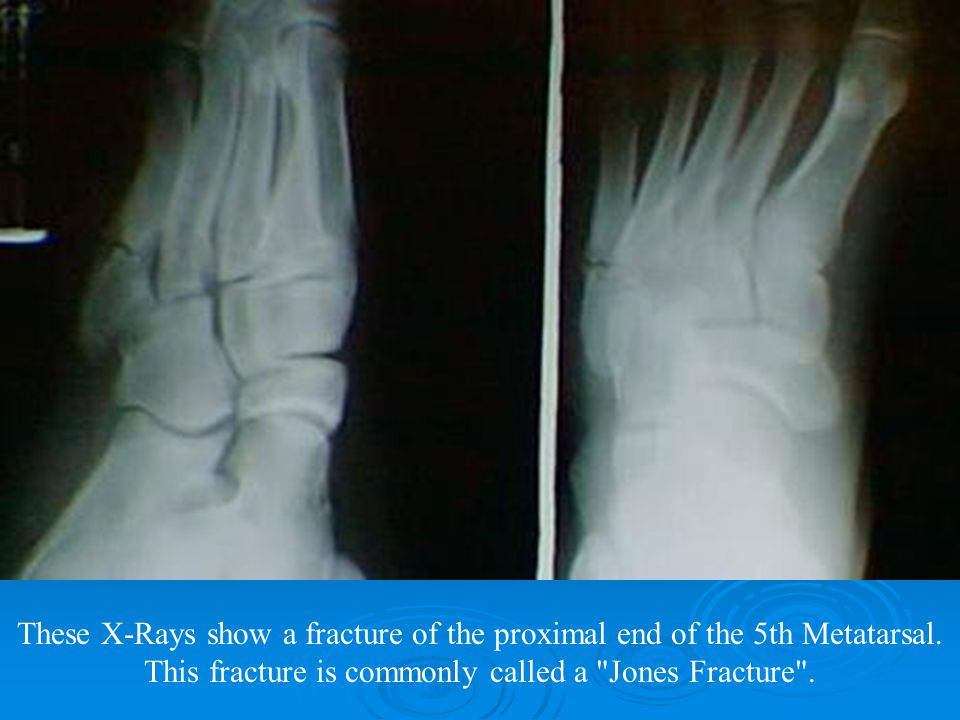 These X-Rays show a fracture of the proximal end of the 5th Metatarsal