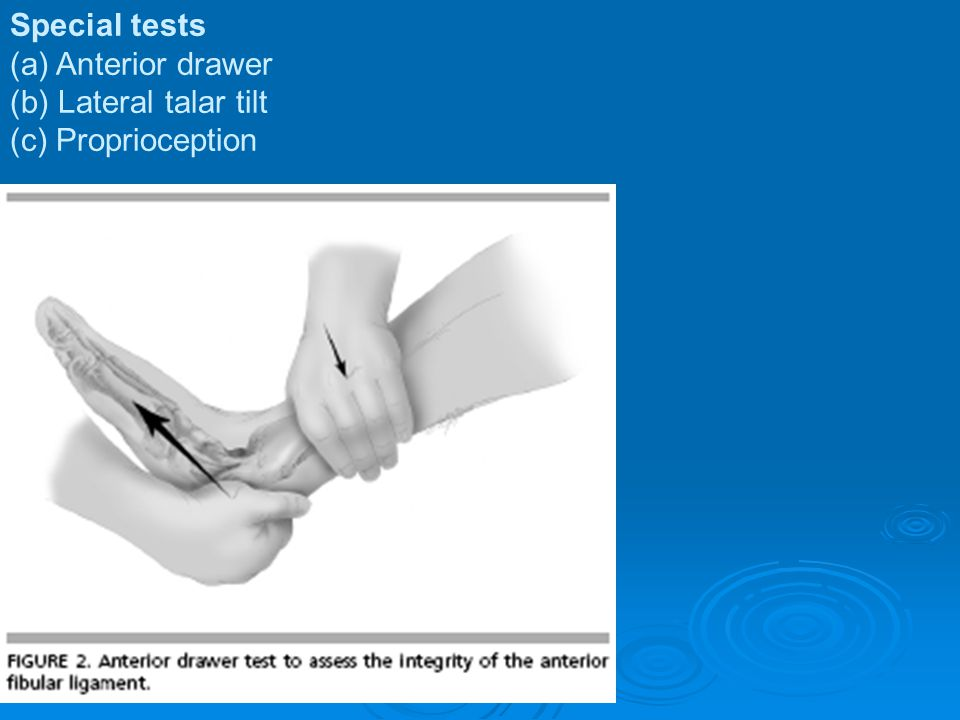 Special tests (a) Anterior drawer (b) Lateral talar tilt (c) Proprioception
