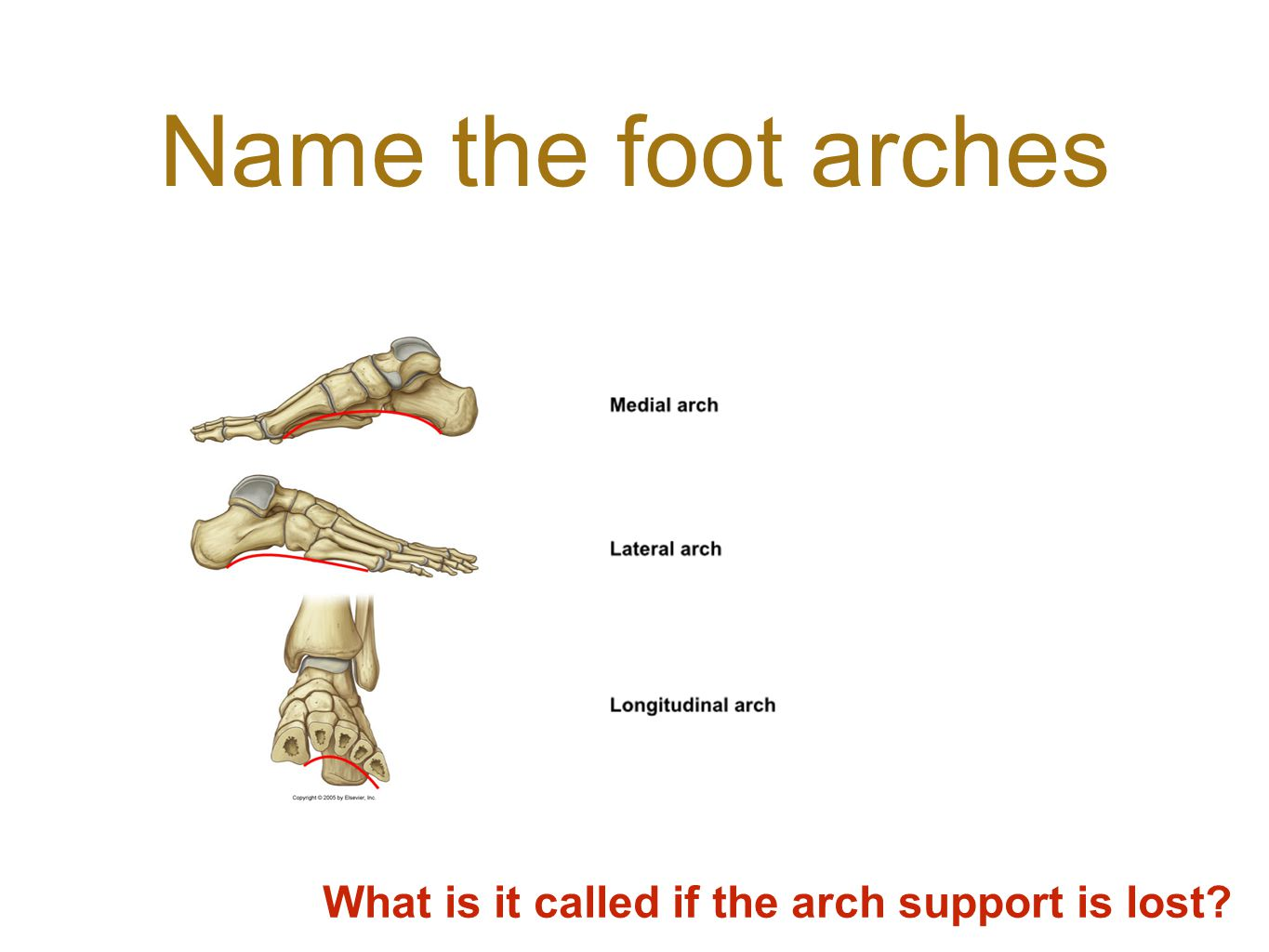 What is it called if the arch support is lost