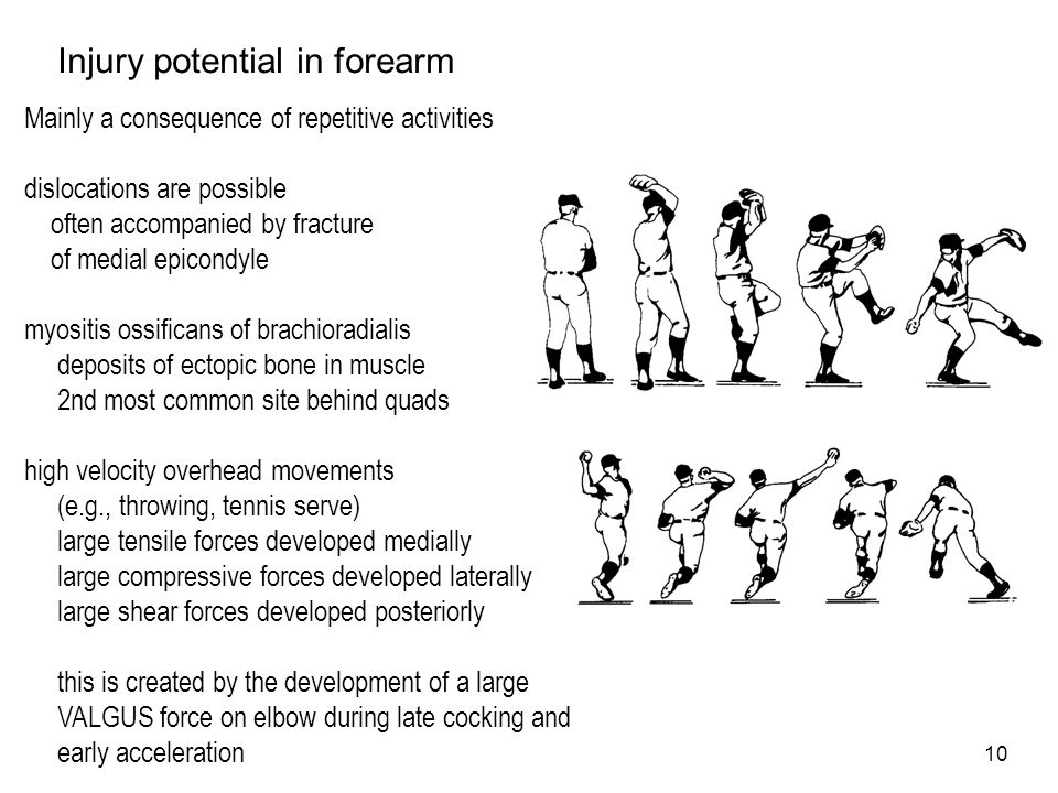 Injury potential in forearm