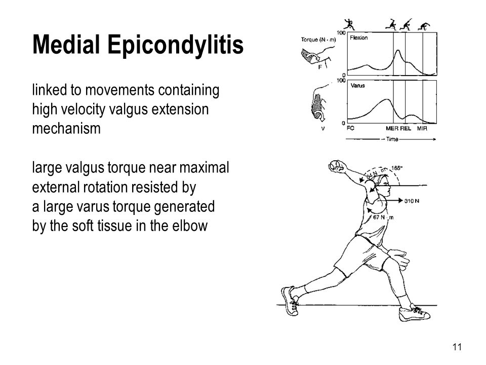 Medial Epicondylitis linked to movements containing