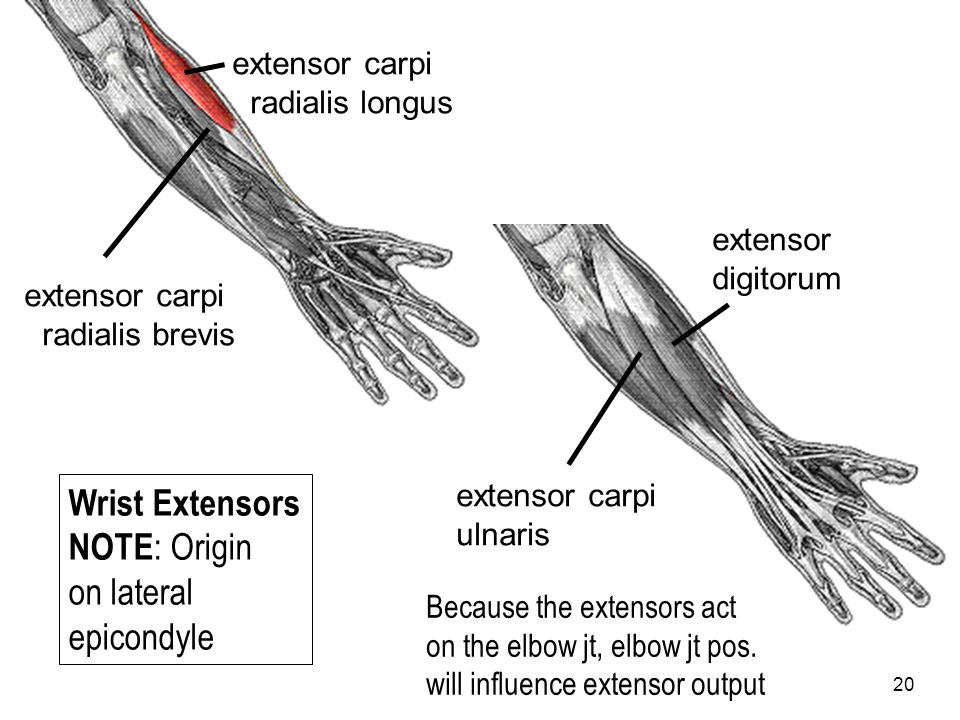 Wrist Extensors NOTE: Origin on lateral epicondyle extensor carpi