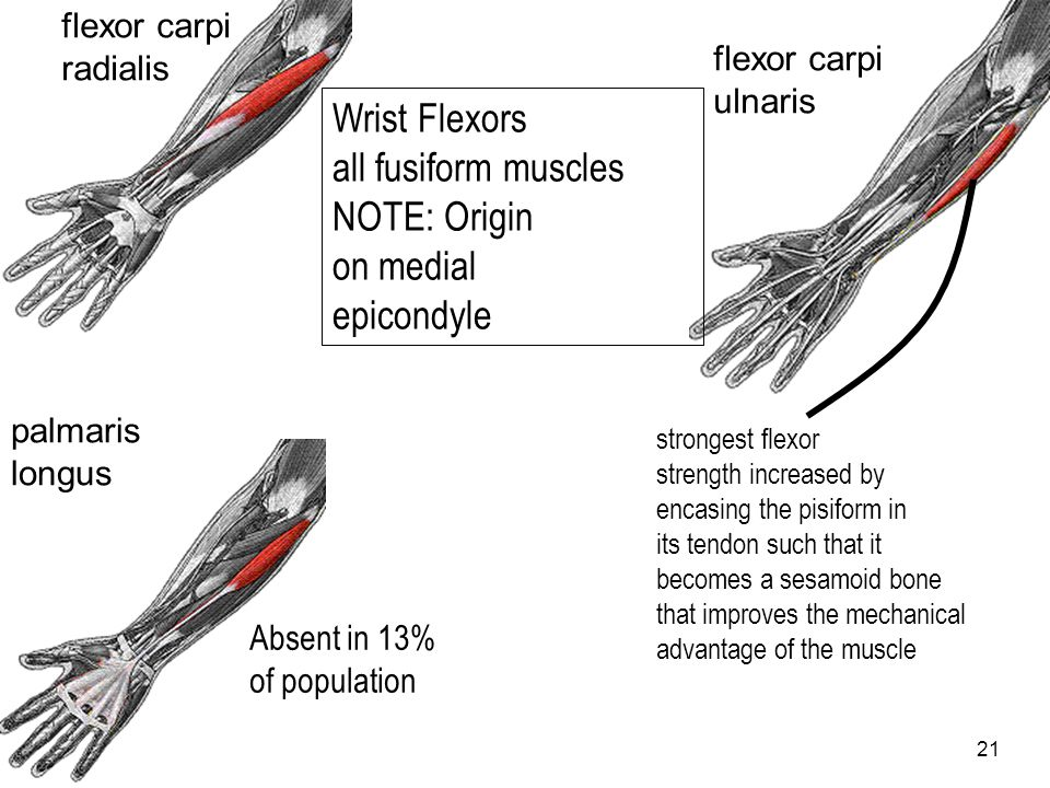 Wrist Flexors all fusiform muscles NOTE: Origin on medial epicondyle