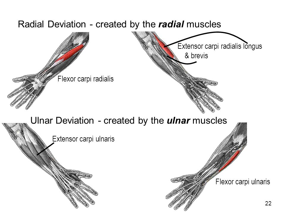 Radial Deviation - created by the radial muscles