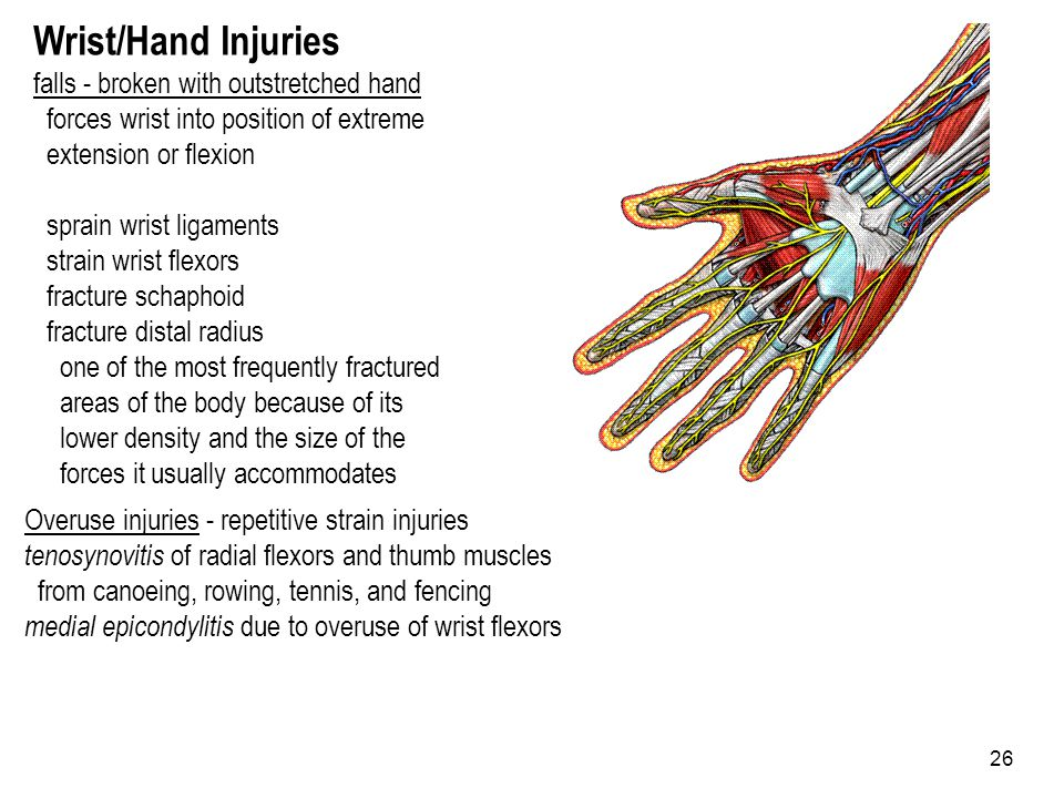 Wrist/Hand Injuries falls - broken with outstretched hand