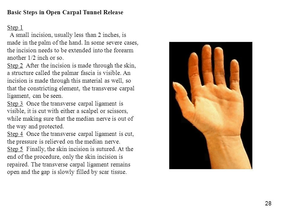 Basic Steps in Open Carpal Tunnel Release