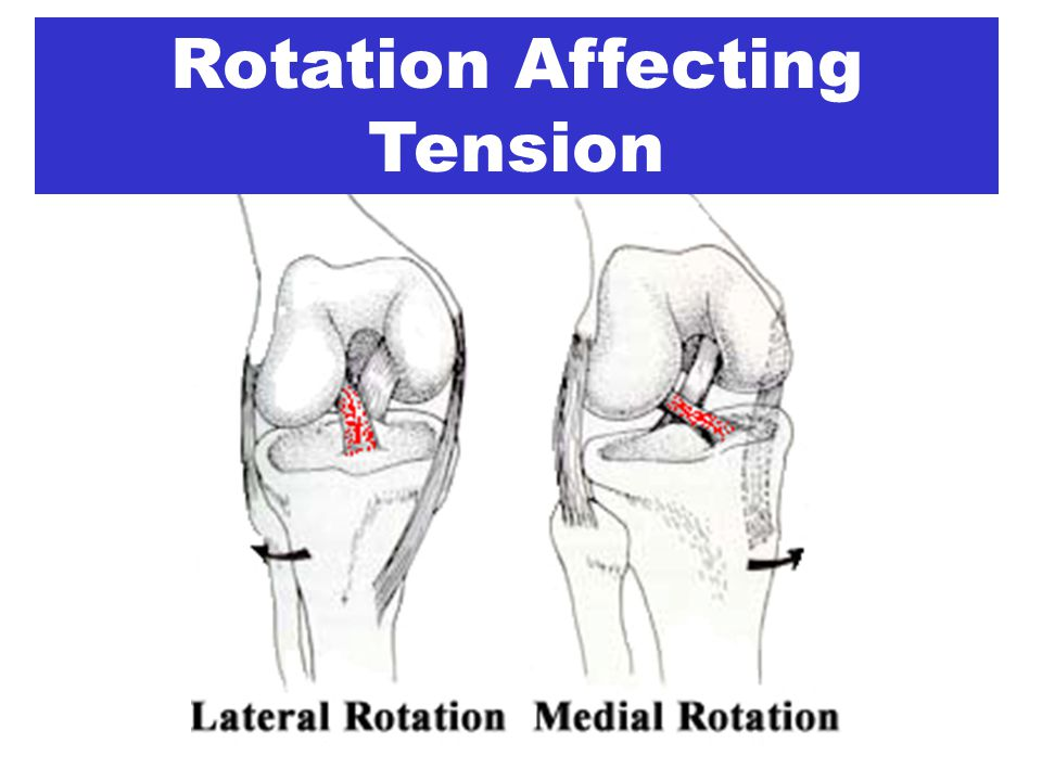 Rotation Affecting Tension