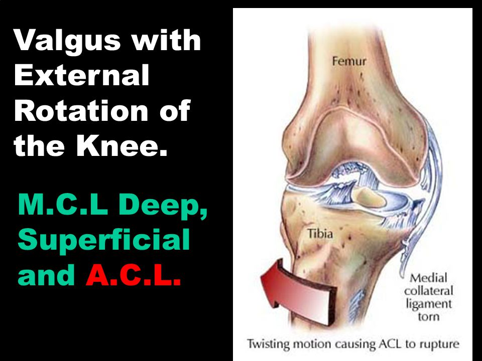 Valgus with External Rotation of the Knee.