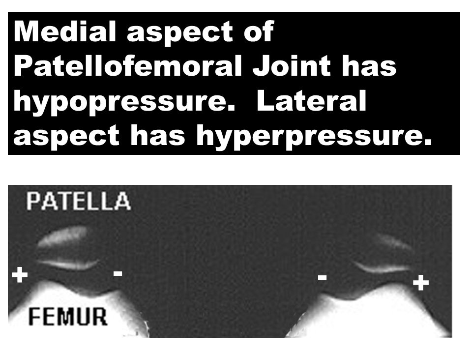 Medial aspect of Patellofemoral Joint has hypopressure
