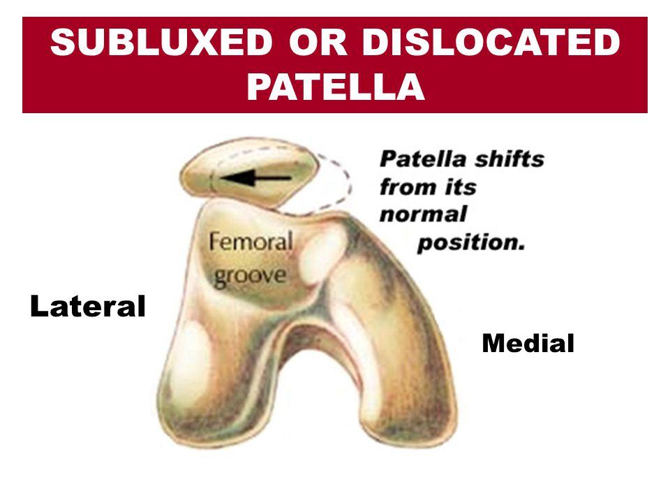 SUBLUXED OR DISLOCATED PATELLA