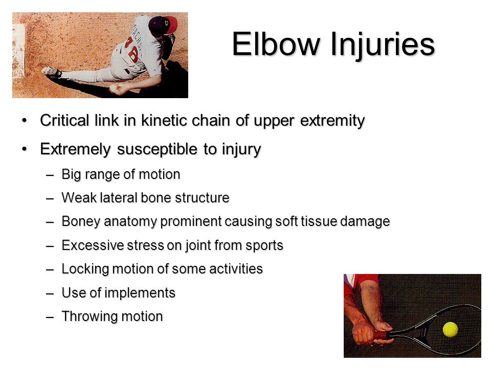 Elbow Injuries Critical link in kinetic chain of upper extremity ...