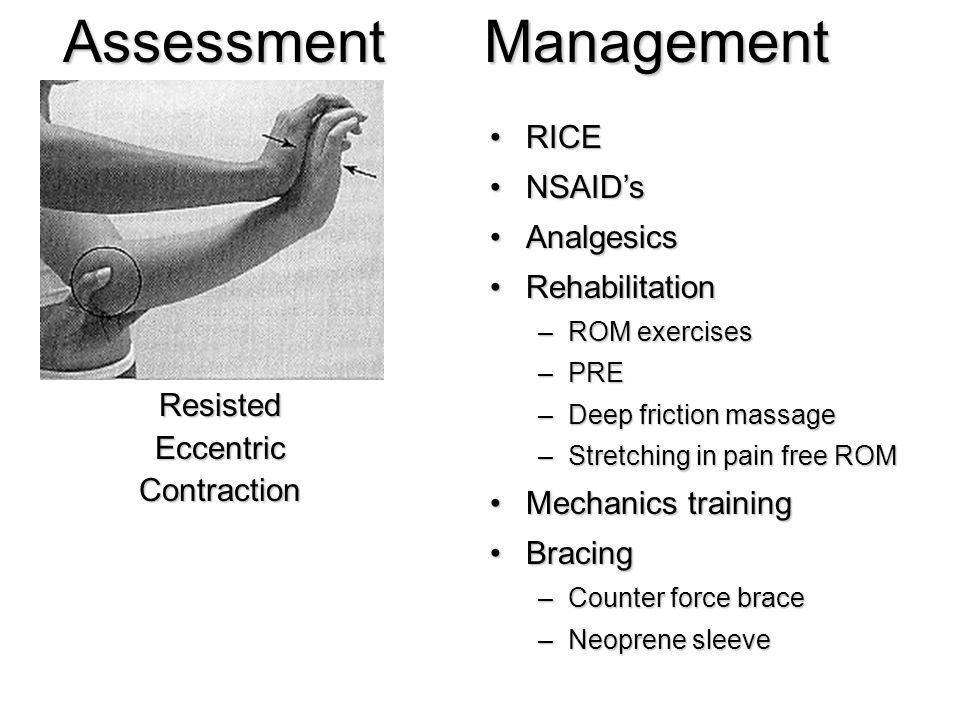 Assessment Management RICE NSAID's Analgesics Rehabilitation