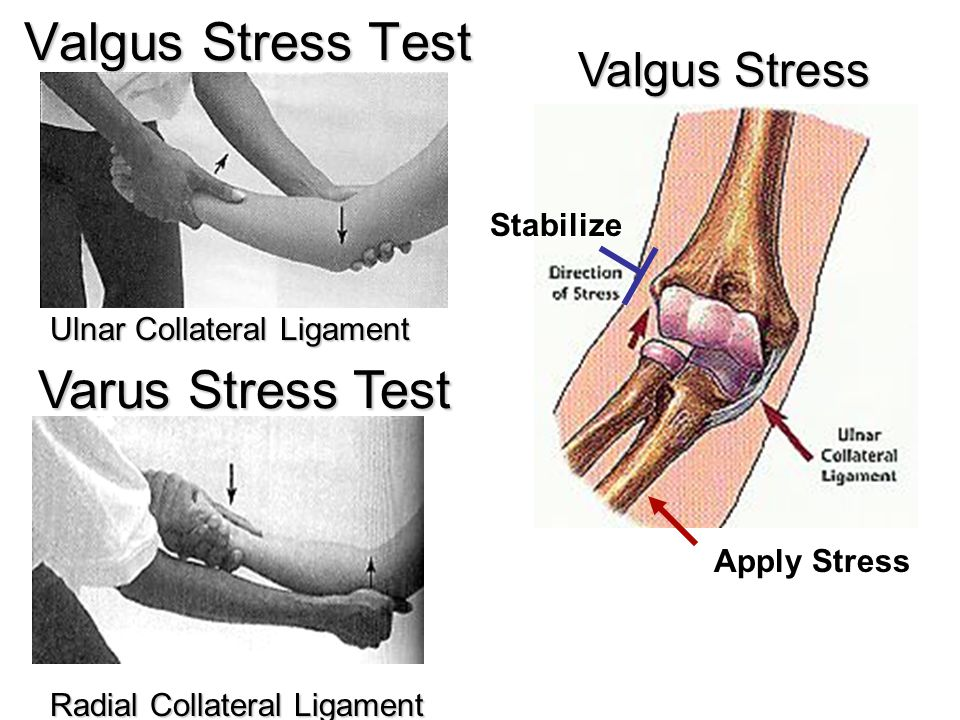 Valgus Stress Test Varus Stress Test Valgus Stress Stabilize
