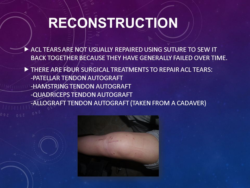 RECONSTRUCTION ACL tears are not usually repaired using suture to sew it back together because they have generally failed over time.