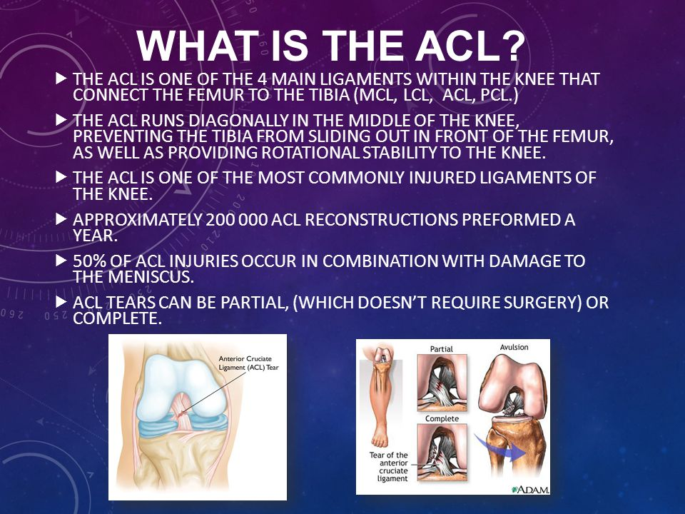 WHAT IS THE ACL The ACL is one of the 4 main ligaments within the knee that connect the femur to the tibia (MCL, LCL, ACL, PCL.)